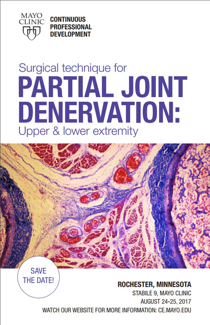 partial joint denervation 1